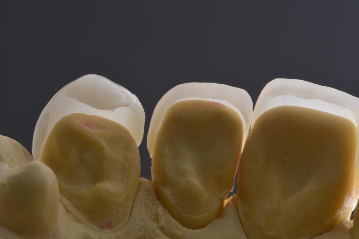 Transformando sorrisos com lentes de contato dentais