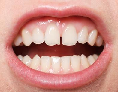 O que são os espaços entre os dentes?